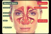 عمل زیبایی بینی با وجود سینوزیت