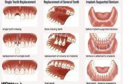 درمان های زیبایی دندان توسط دکتر مجید فر
