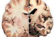 مصرف زیاد اهن و ایجاد الزایمر در بدن