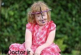 تصاویری هولناک از سندرم خطرناک در این کودک