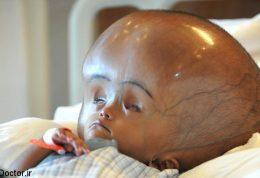 اوج هیدروسفالی در این نوزاد هندی