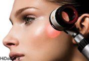 آیا  برای از بین بردن موهای زائد  لیزر درمانی گرینه خوبی  است؟