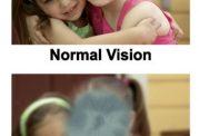 ابداع روش درمانی نوین برای این بیماری لاعلاج چشمی