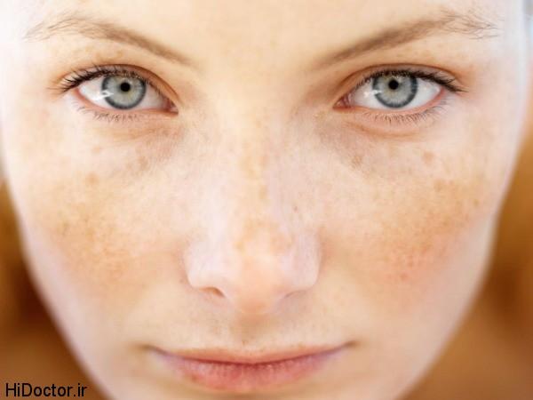 آیا لکه های قهوه ای پوست بعلت پیری بوجود می آید؟
