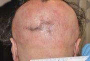 درمان طاسی با این قرص