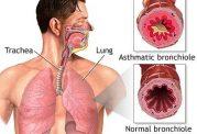 افراد با تحرک کم تنگی نفس می گیرند