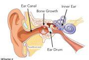 ضرورت رفع آب درون گوش