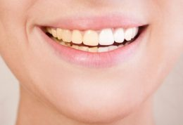 آیا میدانستید در خانه هم می شود دندانها را سفید کرد