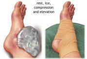 مواردی برای پیشگیری  و درمان صدمات ناشی از ورزش
