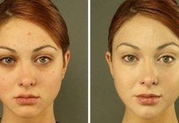 راهکارهایی برای شناخت پوست زیبا