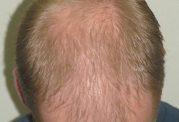 مراقبت مو از نوع مردانه
