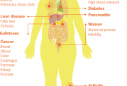 افراد چاق مراقب ابتلا به بیماری های ریوی باشند