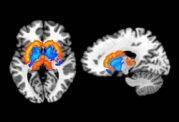 شیوه های تغذیه ای و مقدار چربی بدن و ارتباط آن با شیمی مغز