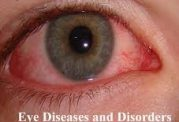 امراض مختلف با علائم چشمی