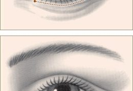 لیفتینگ پلک چشم ها چه مزایا و معایبی دارد؟