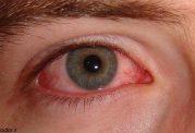 این علائم چشمی خبرهای بدی دارند!