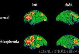 منشا و علل ایجاد بیماری Schizophrenia