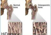 عوامل تخریب استقامت استخوان در اقایان
