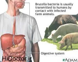 رازآلود ترین بیماری خطرناک دنیا
