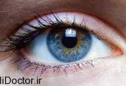 این کار برای سالم ماندن چشم هایتان ضروری ست