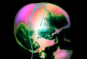 اشخاص جوان افسرده شبکه مغزی با اتصالات زیادتری دارند