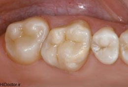 چگونه پی به استحکام دندانتان ببرید