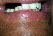 پیوند دندان و دهان مصنوعی با کمک پرینتر 3 بعدی