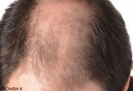 مردان کم مو در معرض سرطان اند