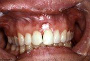 به سن ابتلا به سرطان دهان توجه کنید