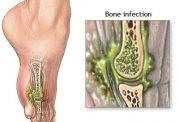 علائم و درمان عفونت در مفصل