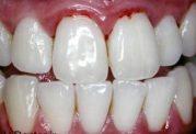 رسوب دندان منجر به این بیماری می شود