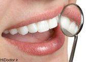 پیشگیری از تخریب دندانها با رعایت این موارد