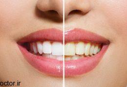 سفیدی دندان با خمیردندان نارگیلی