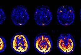 اطلاعاتی پیرامون مرگ مغزی
