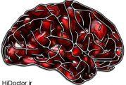 درمان طبیعی بیماریهای ذهنی در سالمندان