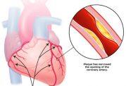 مراحل و نحوه گرفتگی قلب