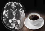 اختلال و التهابات مغزی با غذاهای فوری