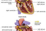 اطلاعاتی در مورد بلوک قلبی و انواع ان