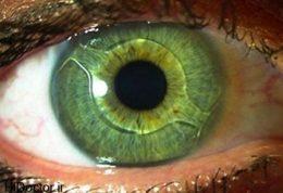 بهترین زمان کاشت لنز داخل چشمی