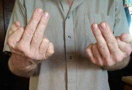 دو انگشت جالب و اضافی این مرد را ببینید