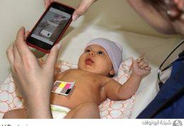 به روزترین نحوه تشخیص زردی نوزاد