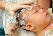 بررسی مشکل صرع در اطفال