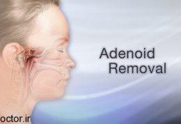 طبیعی ترین درمان ها برای رفع ادنوئید