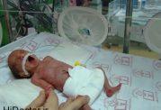 آمار رو به بالای تولد زودهنگام جنین های ایرانی