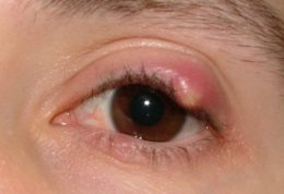 شالازیون چشم را با کمپرس آب گرم درمان کنید