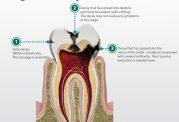 حواستان به پوسیدگی دندانتان باشد