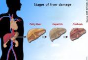 هپاتیت،بیماری کبدی مربوط به پوست