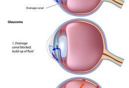 دهه چهلی ها و این بیماری بینایی
