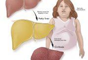 شیوع بی سابقه کبد چرب در اطفال