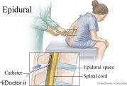 بی حسی نخاعی یا اسپاینال در زایمان بدون درد